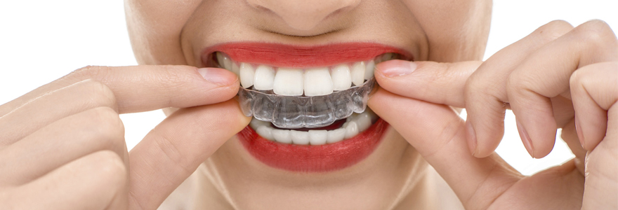 orthodontie solutions invisibles